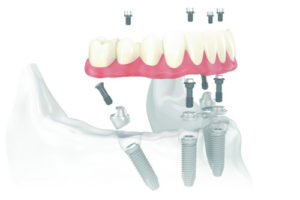 Hybrid Implant