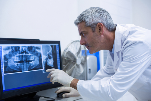 oral surgeon inspecting xrays of mouth