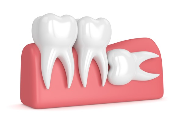 wisdom tooth swelling