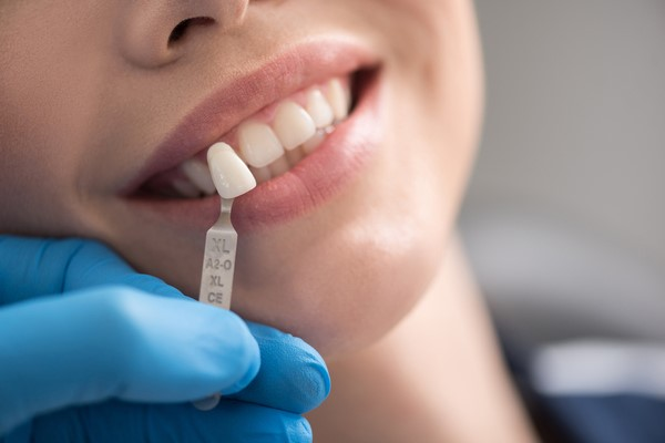 dentist fitting in a dental implant