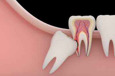 impacted wisdom tooth pushing on the molars