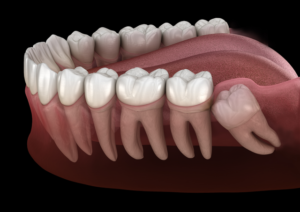 Impacted canine teeth in adults